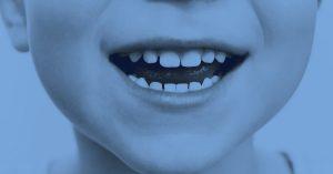 Denti rotti